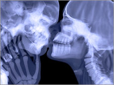 Gallery Print  Lovers kissing, X-ray - Gustoimages