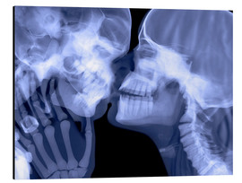 Alubild  Lovers kissing, X-ray - Gustoimages